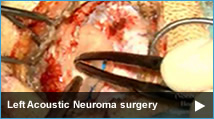 Left Acoustic Neuroma (Vestibular Schwannoma) surgery