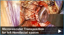 Microvascular Transposition for left Hemifacial spasm